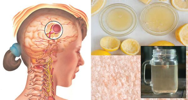 Natural Drink That Make Your Migraine Disappear In Just 10 Minutes!