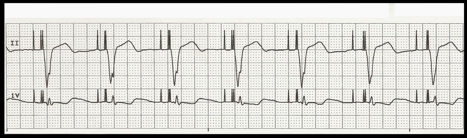 Float Nurse: EKG Rhythm Strip Quiz 188