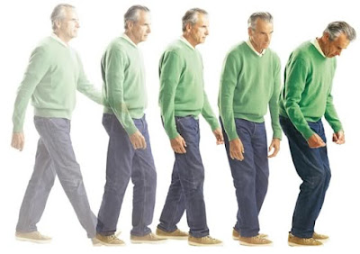 Pengobatan Tradisional Parkinson