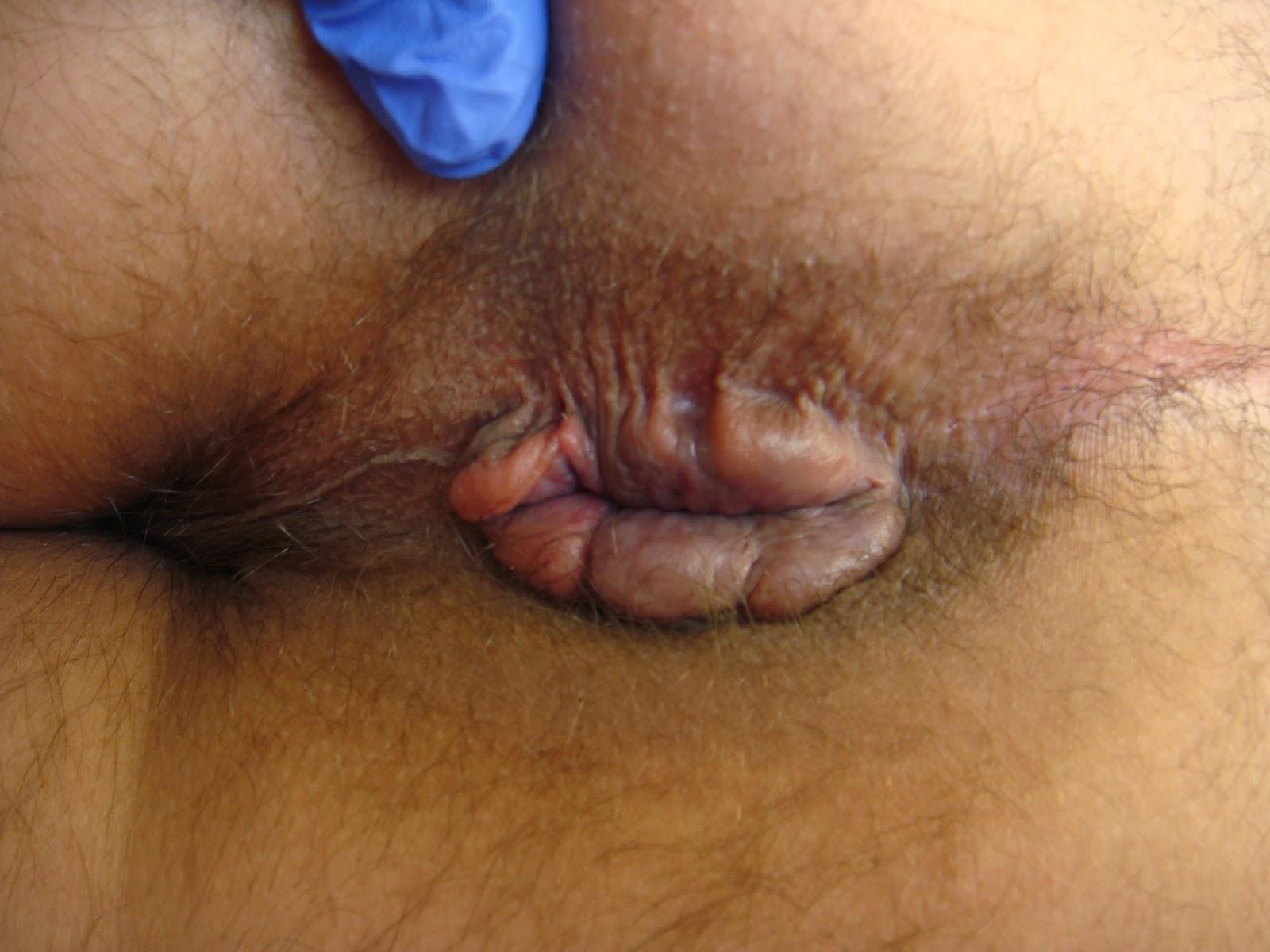 Первая помощь при кровотечении геморроидальном