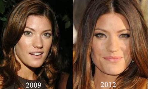 linda evangelista plastic surgery