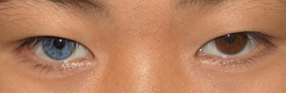 Heterochromia penuh