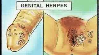 Herpes Herpesinden Nasıl Kurtulur