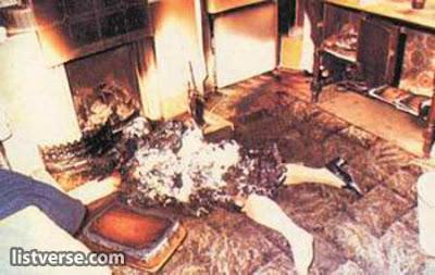 combustão perna espontânea mulher humana