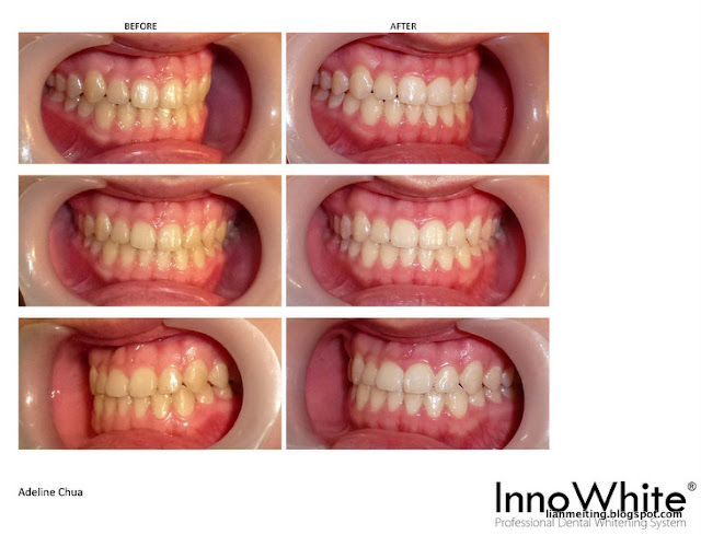 how to make my teeth white from yellow