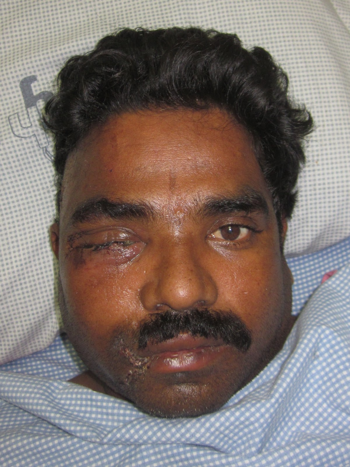 COMMUNITED DISPLACED FRACTURE ZYGOMA - OUTCOME-2.bp.blogspot.com