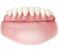 Prótesis híbrida sobre implantes dentales
