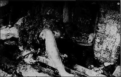 Combustão humana espontanea imagens pernas