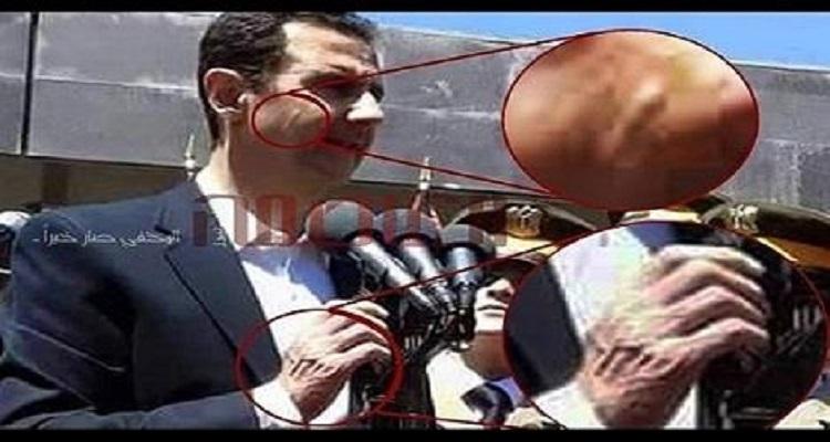 الكشف عن سر المرض الغريب الذي ظهر على بشار الأسد
