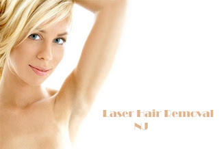 Laser Hair Removal NJ