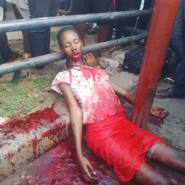 lady spotted vomitting blood in ikorodu (photo) - health - nigeria, Skeleton