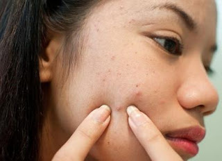 How To Protect Against Pimples - 5 Simple Techniques