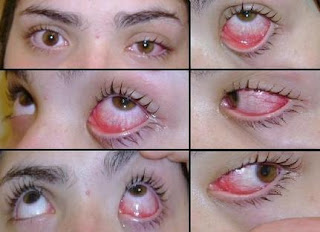 How To Get Rid of Pink Eye Symptoms