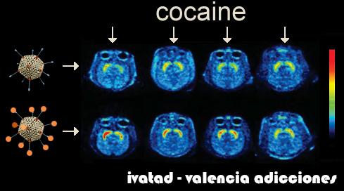 VACUNA CONTRA LA COCAINA | VALENCIA ADICCIONES