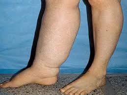 causes of edema in lower legs