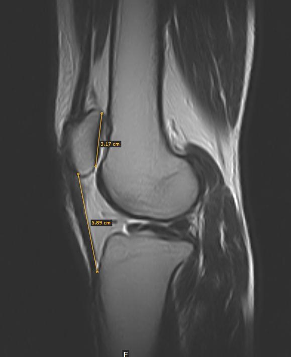 Jumper's Knee-MRI - Sumer's Radiology Blog