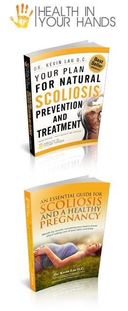 Scoliosis Books
