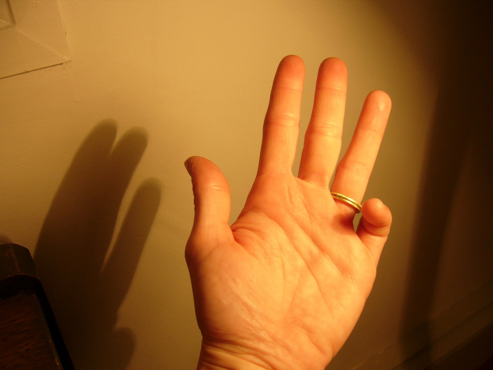 Why the little finger of the left hand goes numb What to do if the hand goes numb 61