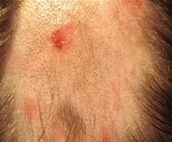 Shingles On Scalp Pictures Symptoms And Treatment For