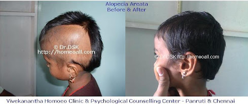 Alopecia Areata Before & After Treatment