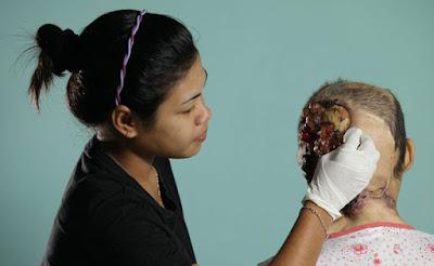 rawatan kanser kulit