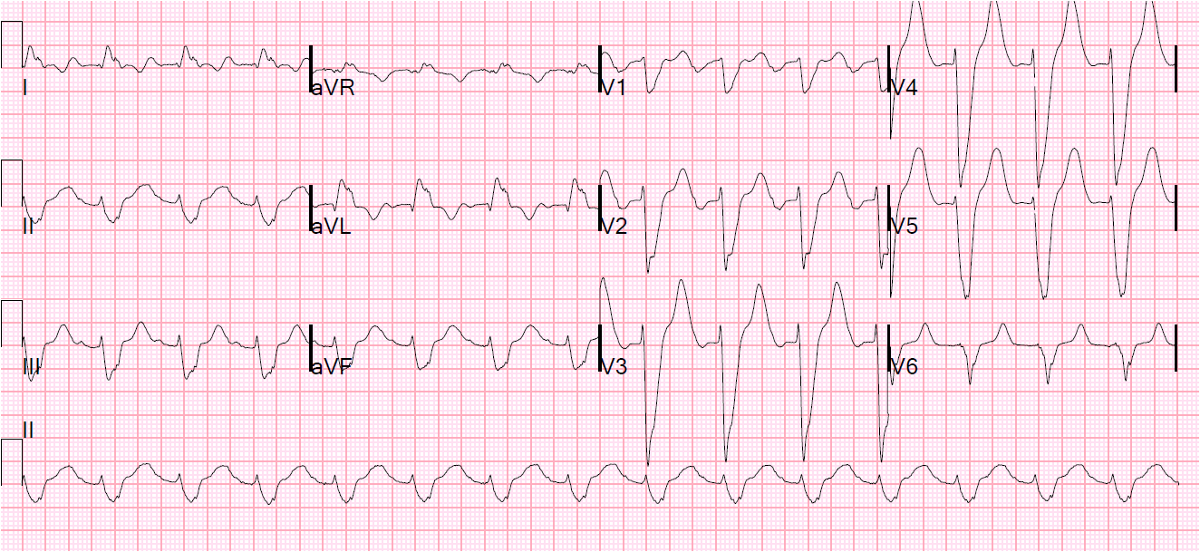 There is left bundle branch block with a qrs duration of 220 ms
