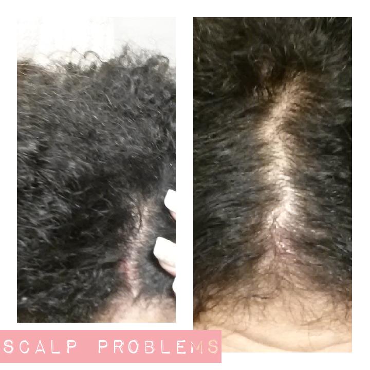 Steps After Washing Natural Hair