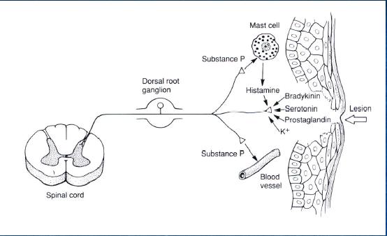 Hiperalgesia primaria