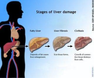 Penyebab, Gejala dan Penanganan Sirosis - Penyakit Hati