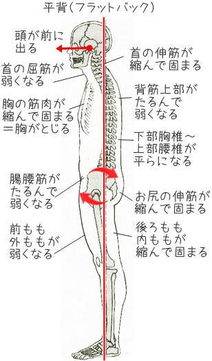 フラットバックによる腰痛