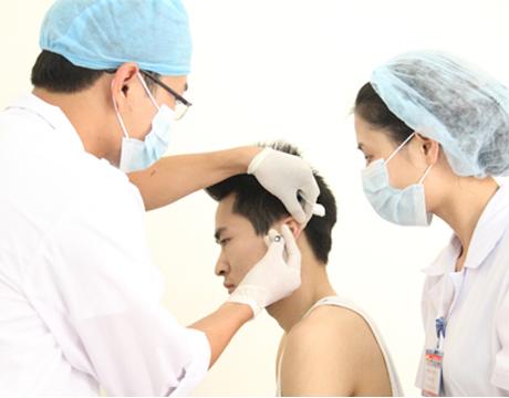 Điều trị viêm mũi dị ứng bằng phương pháp cấy chỉ