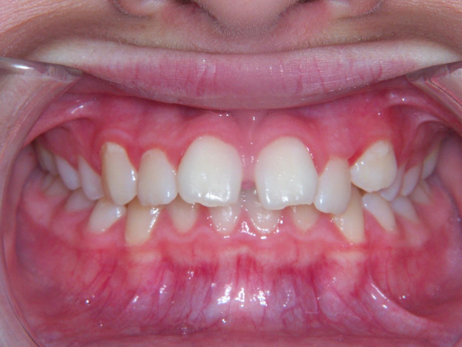 Truman Orthodontics: Overbite Correction Using a ...