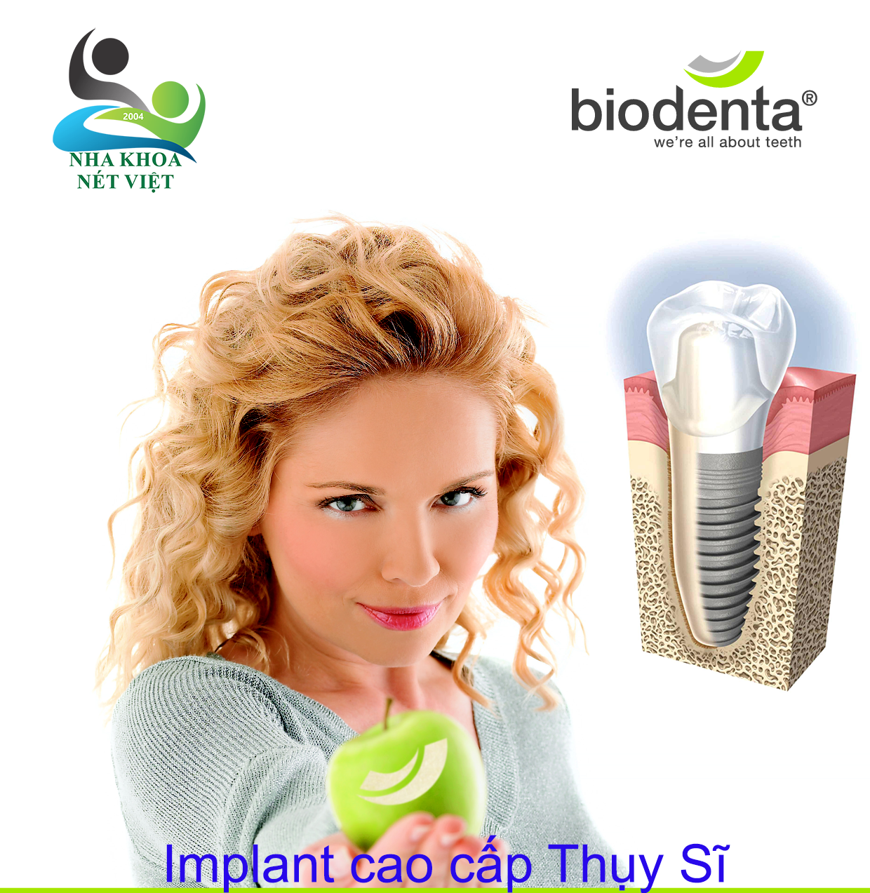 BIODenta Implant Switzerland