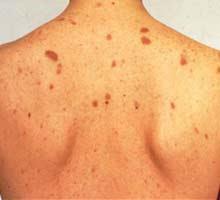 manchas oscuras hiperpigmentacion