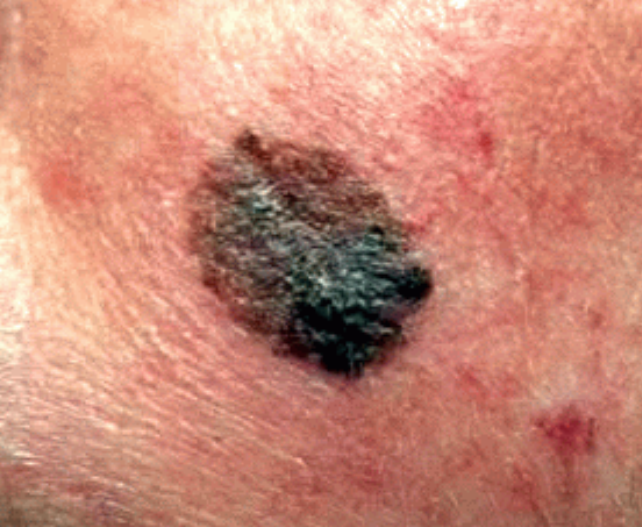 Pictures of skin cancer: Pictures of skin cancer