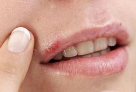 Kick Your Cold Sore / Herpes Blister FAST with These Natural Home Remedies!