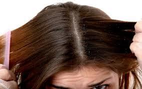 Cara Menghilangkan Kutu Rambut Dengan Cepat dan Alami