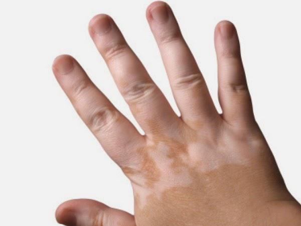 Skin disorder treatments