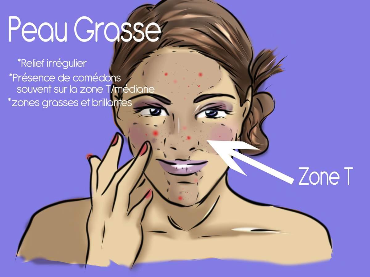 Confessions d 39 une beauty loveuse peaux grasses et - Coup de soleil sur le visage que faire ...