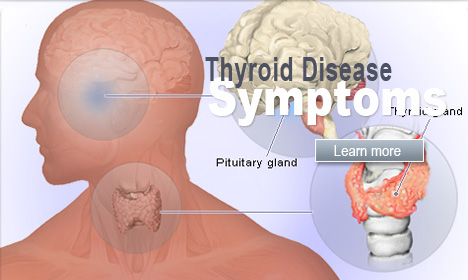 Top 13 Signs That You May Have a Thyroid Disorder