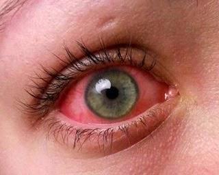 Sakit Mata Alahan