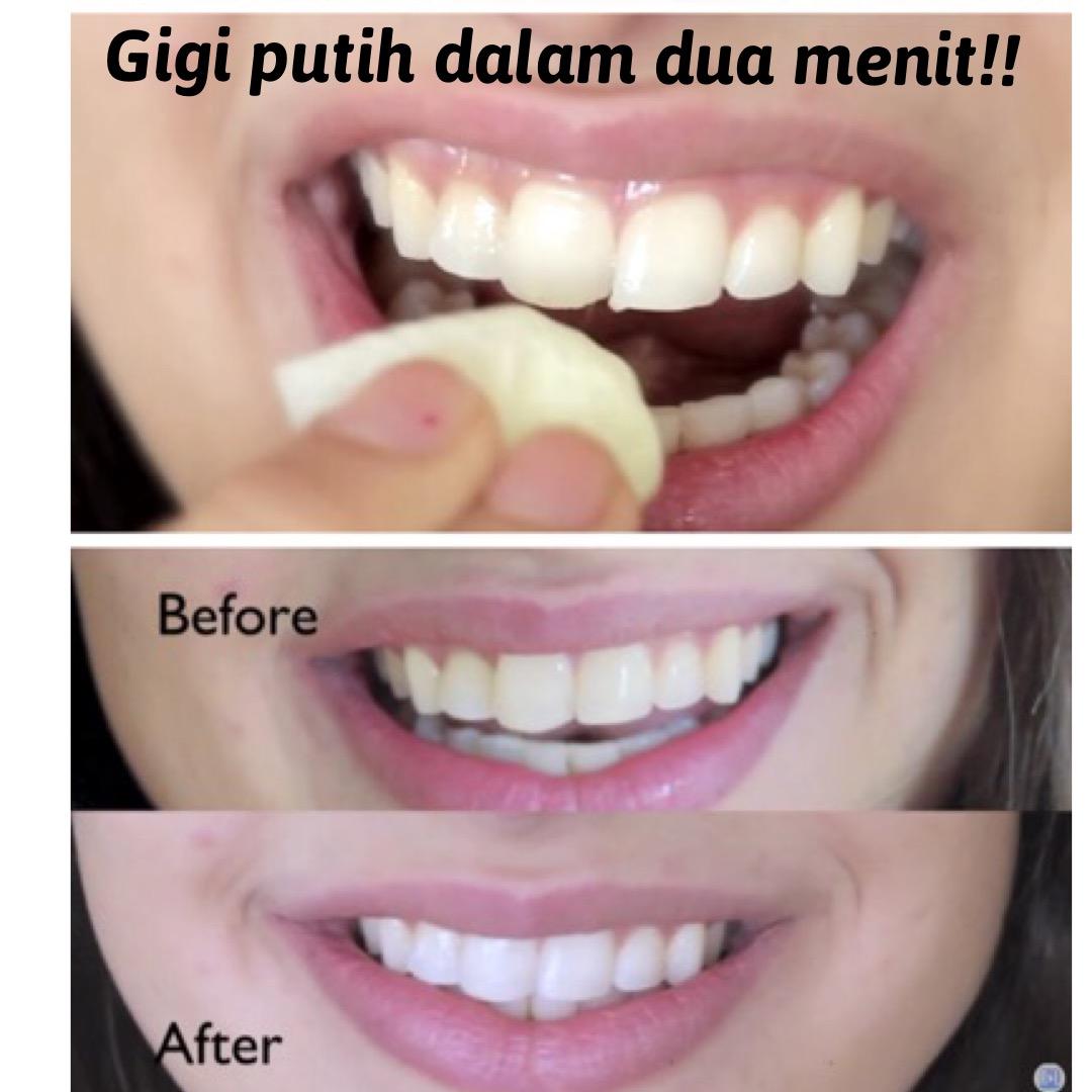 Memutihkan Gigi Dalam 2 Menit All In Gadget