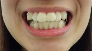 To A Better Smile Invisalign Stretchy Elastics And