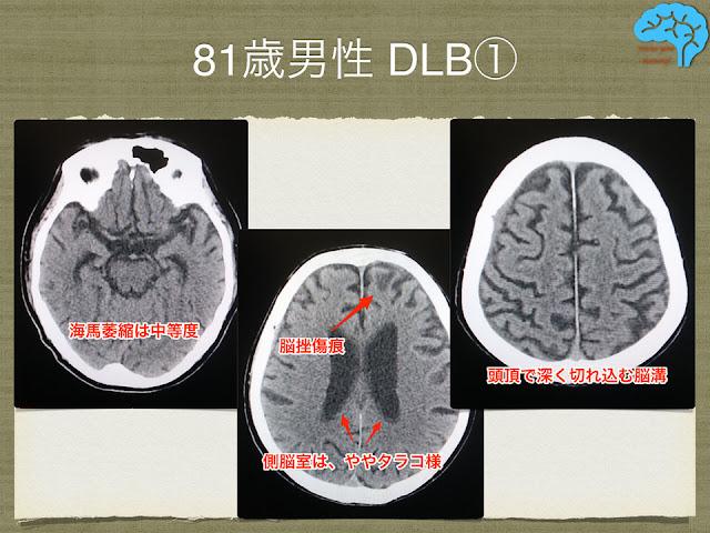81歳男性、DLB。画像所見はATD。