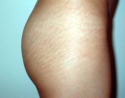 petua merawat selulit, masalah selulit kulit, selulit mengurangkan keyakinan, selulit, masalah selulit di paha, rawatan selulit di perut, masalah selulit di payudara