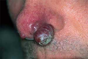 Kaposi Sarcoma| Definition , Etiology , Clinical features, Investigation, Differential diagnosis, Treatment