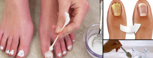 Как в домашних условиях убрать грибок на ногах