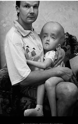Дете, родено слуд Чернобил