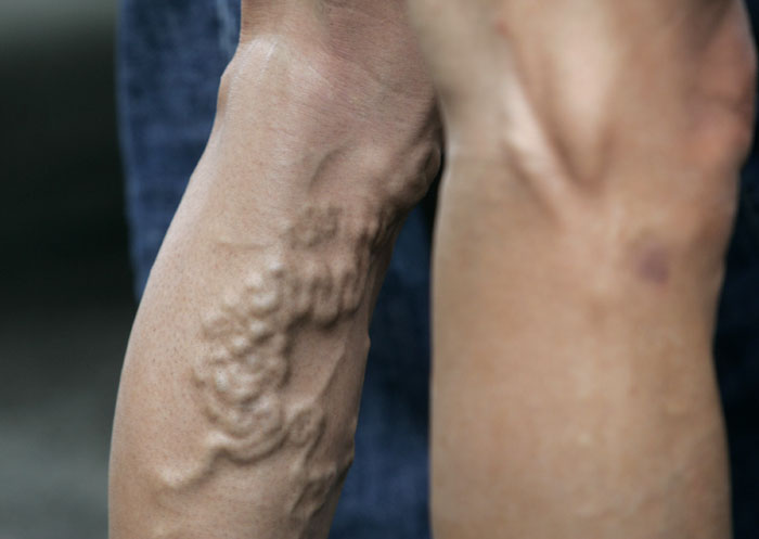 A la psoriasis es posible comer las nueces