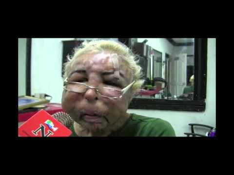 Vain Man Injects His Face with Household Products, Ends Up Disfigured